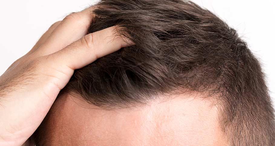 Att tänka på när du letar klinik för hårtransplantation